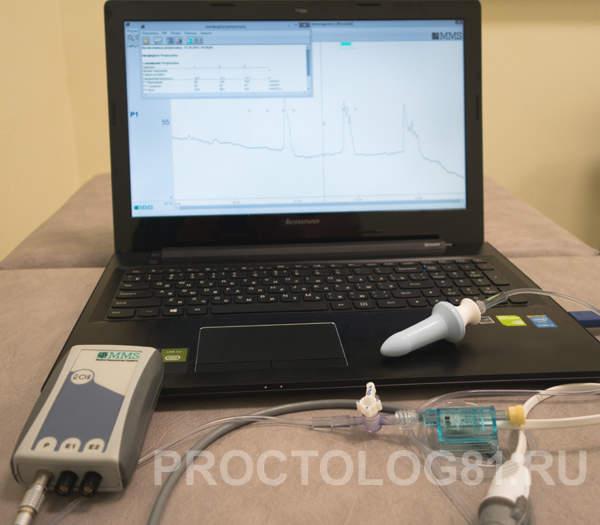 Прибор для сфинктерометрии и БОС-терапии WMP Solar G1 (MMS, Голландия)