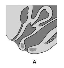 Ректоцеле I степени (фото A).
